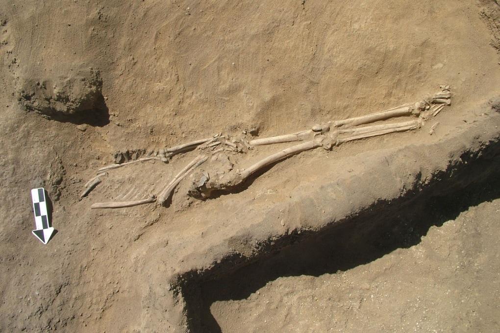 Calcoli della prostata di 9.000 anni fa