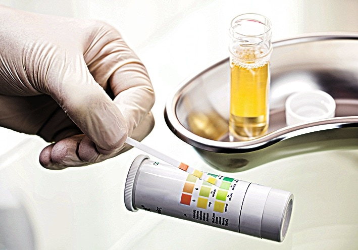 c0134320-urine_test-spl_preview