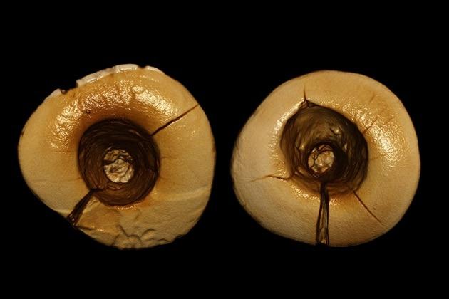 Le più antiche otturazioni dentali scoperte in Italia