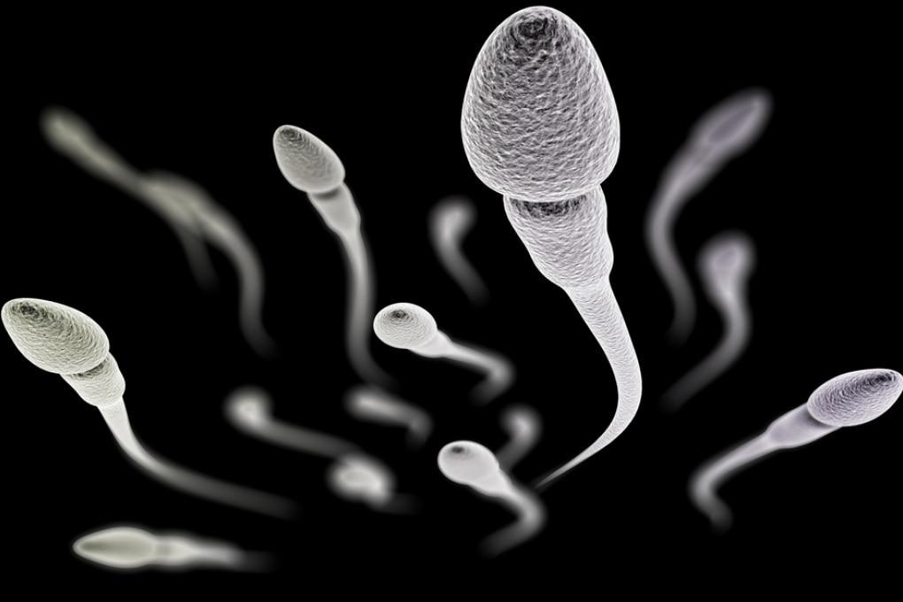 Una scossa corregge il DNA degli spermatozoi