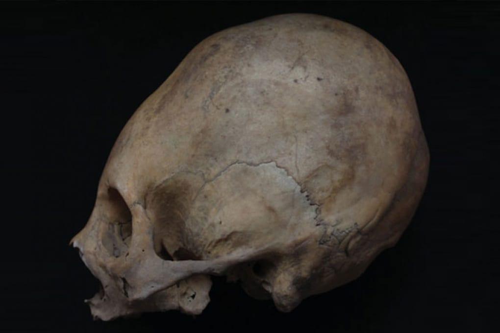 Perché i Collagua del Perù avevano il cranio allungato?