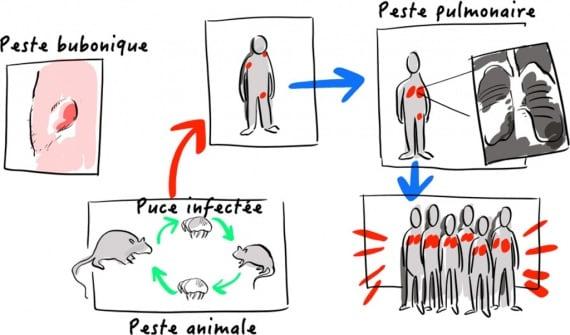 Madagascar, peste, peste bubbonica, peste polmonare, Yersinia pestis, antibiotici, epidemie
