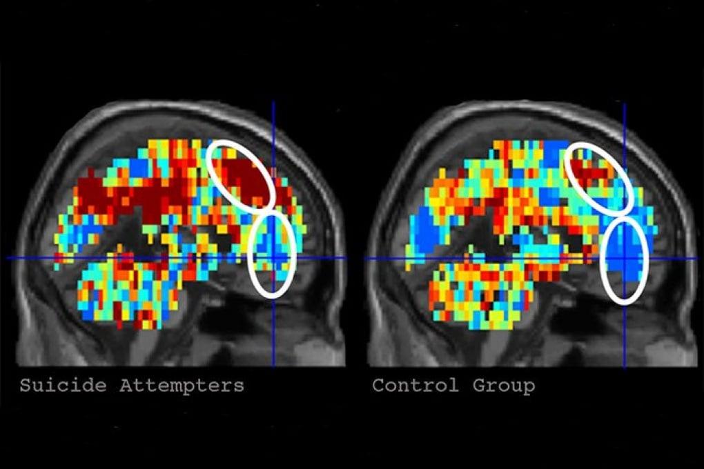 Prevenire i suicidi con l'intelligenza artificiale