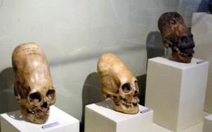 cranio, dolicocefalia