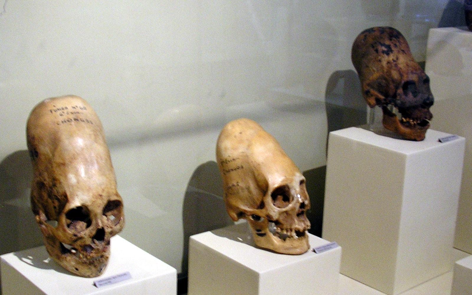Risultati immagini per i crani allungati