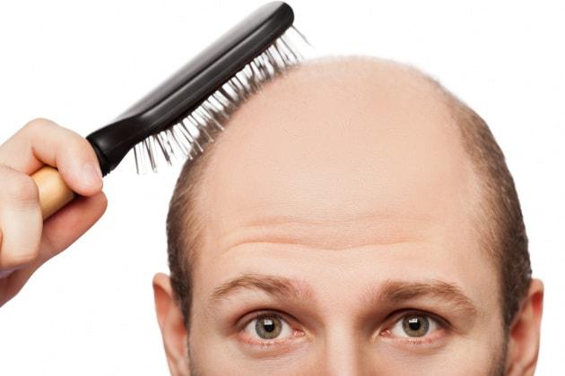 nuova cura per alopecia
