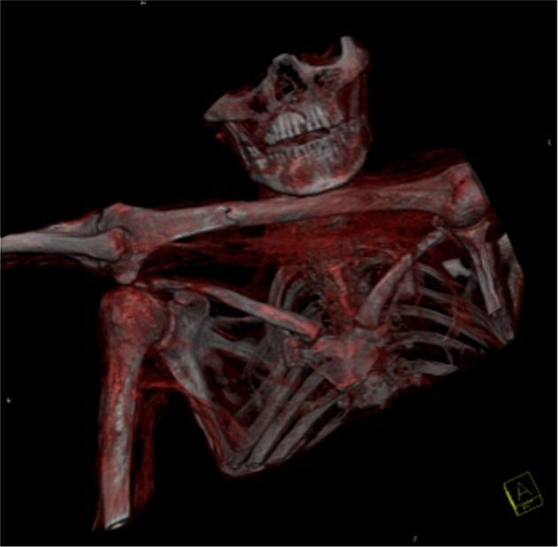 Nove cose che (forse) non sai di Ötzi