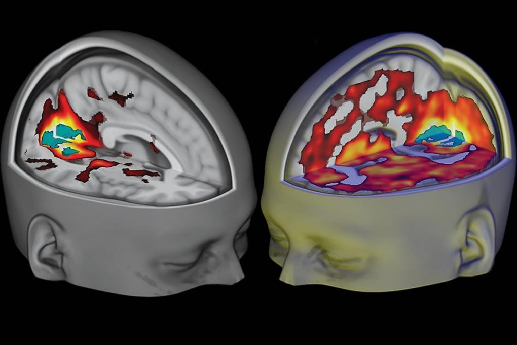 Le droghe psichedeliche creano un nuovo stato di coscienza