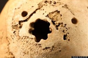 trapanazione del cranio, medicina Inca, cervello, membrana del cervello, storia della medicina