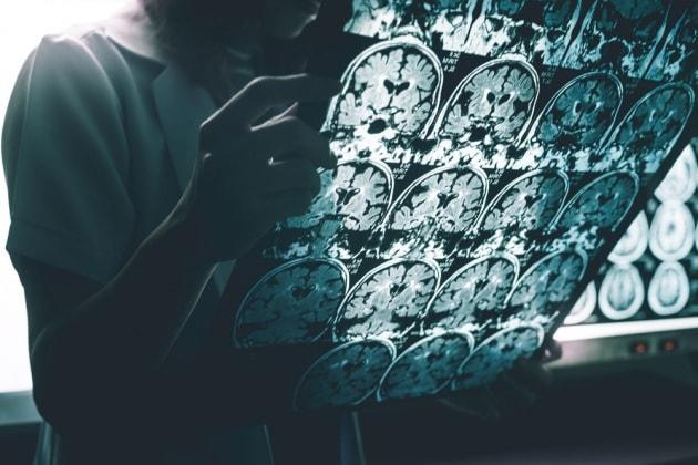 Abbiamo bisogno di nuovi criteri per diagnosticare l'Alzheimer?