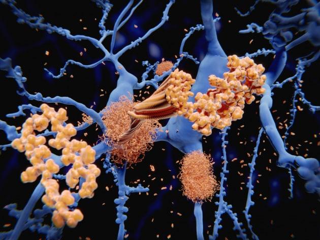 Alzheimer: perché quelle placche nel cervello non sono sempre collegate a demenza