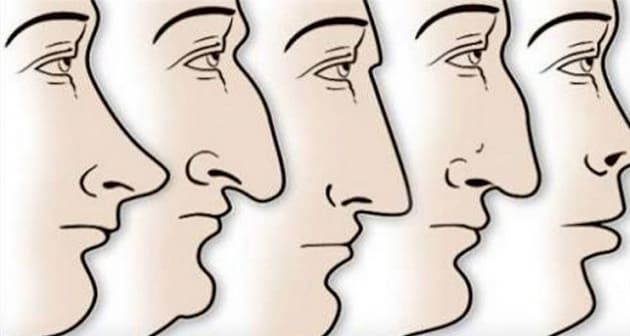nose-shape