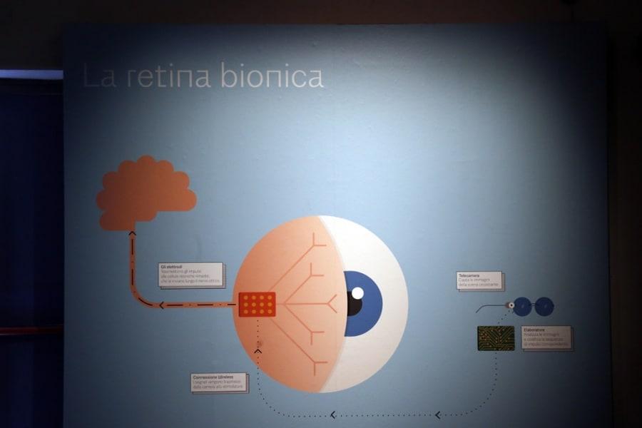 retinaartificiale
