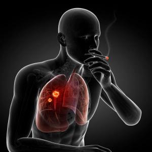 che cosa succede (di buono) quando smettete di fumare