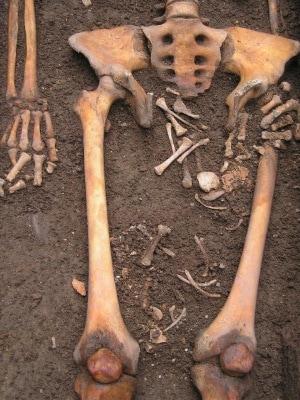 archeologia, antropologia forense, parto post mortem, parto nella bara, chirurgia, eclampsia
