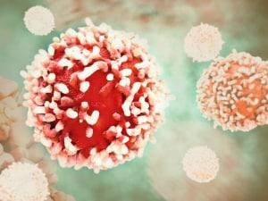 diagnosi precoce, cancro, tumori, CancerSEEK, biopsia liquida