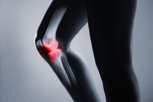 Un osso del ginocchio scartato dall'evoluzione sta ricomparendo