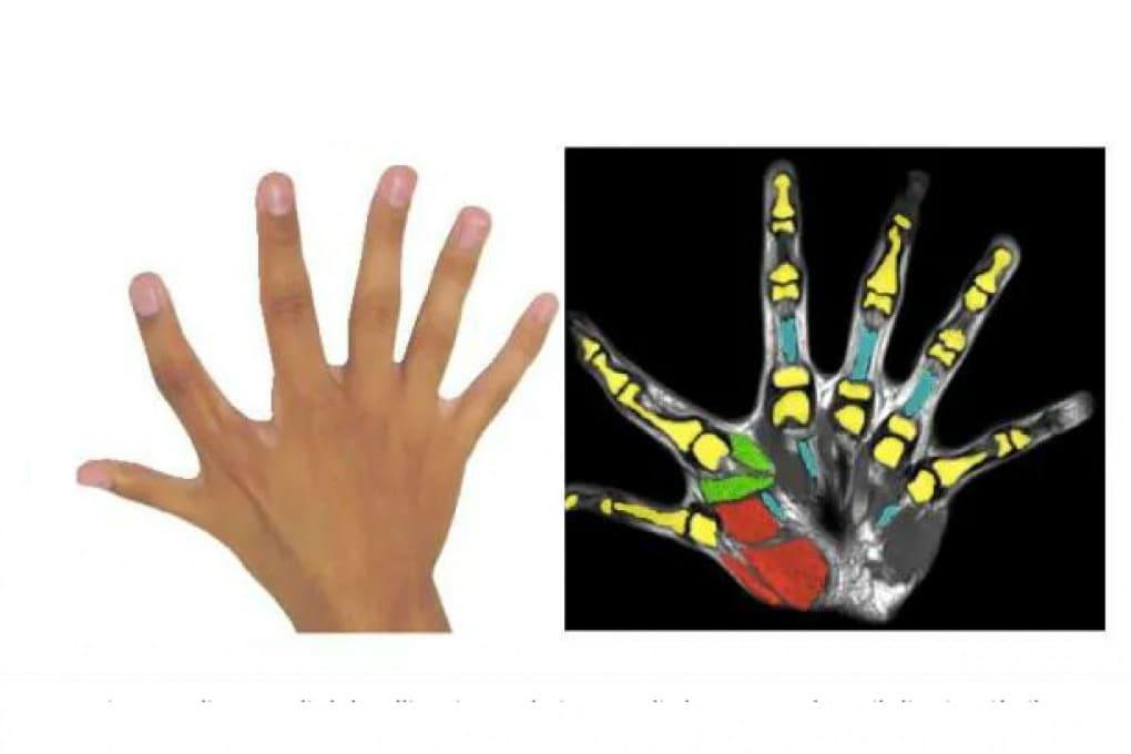 Chi ha la mano a sei dita ha una supermano