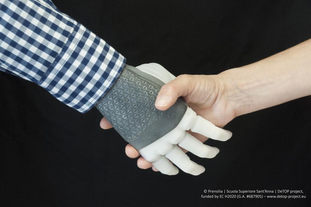 Mano robotica: il primo impianto permanente