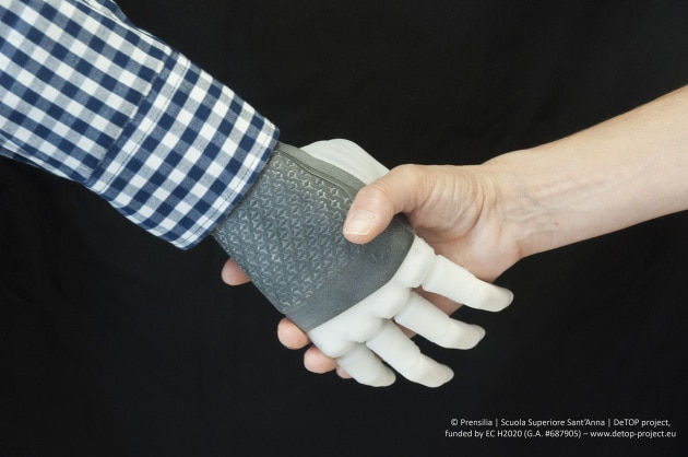 hand_prosthesis_-_photo_2