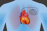 pacemaker_shutterstock_390154804