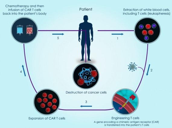 tumori, cancro, linfociti T, CAR-T, terapie personalizzate