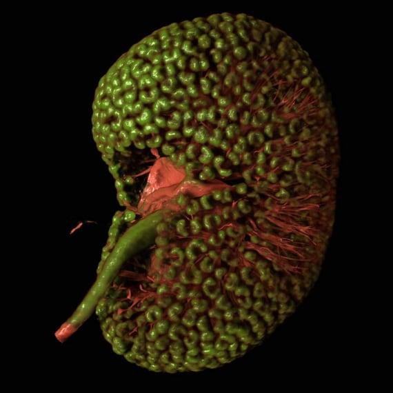 Wellcome Images, rene di un embrione di topo