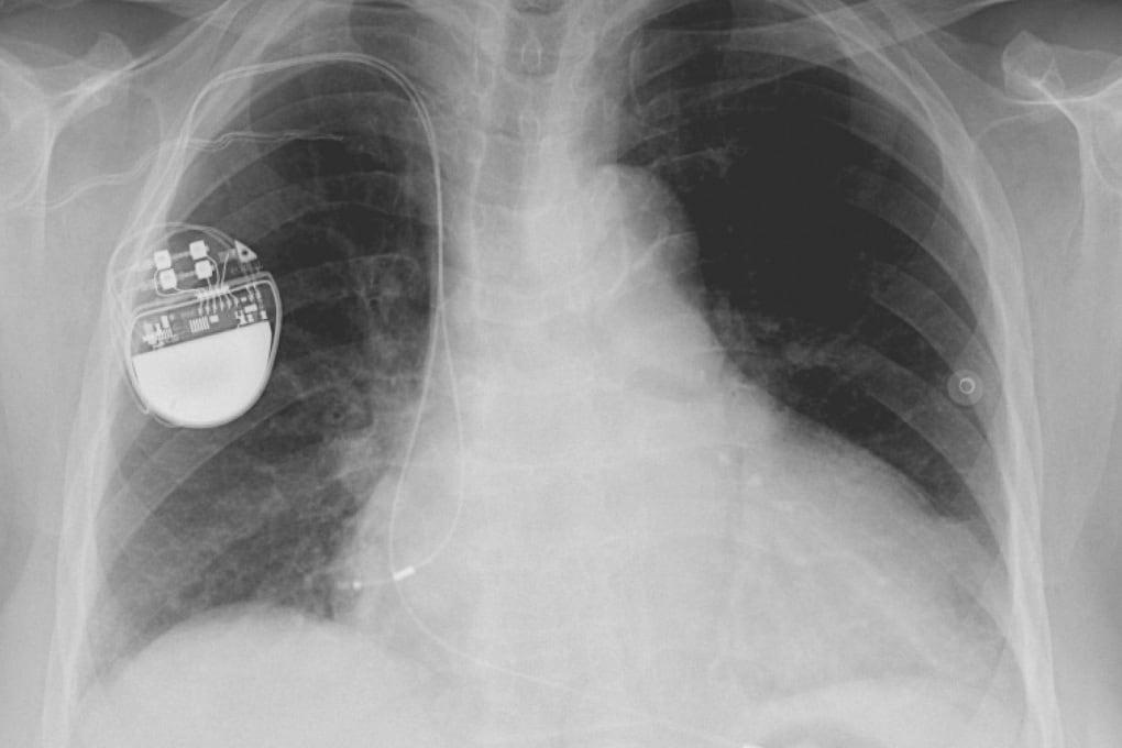 Pacemaker (e altri dispositivi biomedicali) a prova di hacker