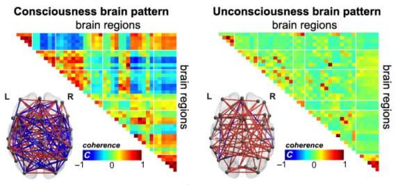 cervello e coscienza