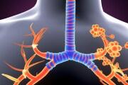 alveoli-polmonari
