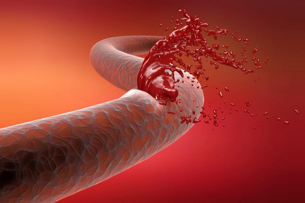 L'idrogel che ripara le arterie e blocca le emorragie