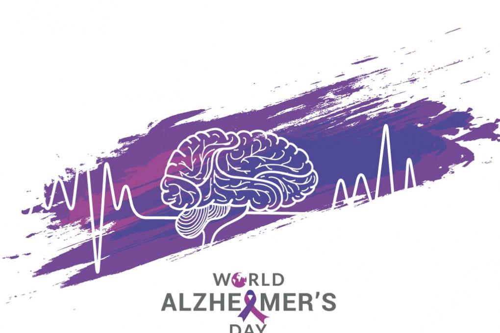 Alzheimer: scoperto un circolo vizioso nella produzione di beta-amiloide
