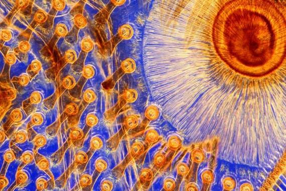 Wellcome Images, struttura delle zampe dei coleotteri