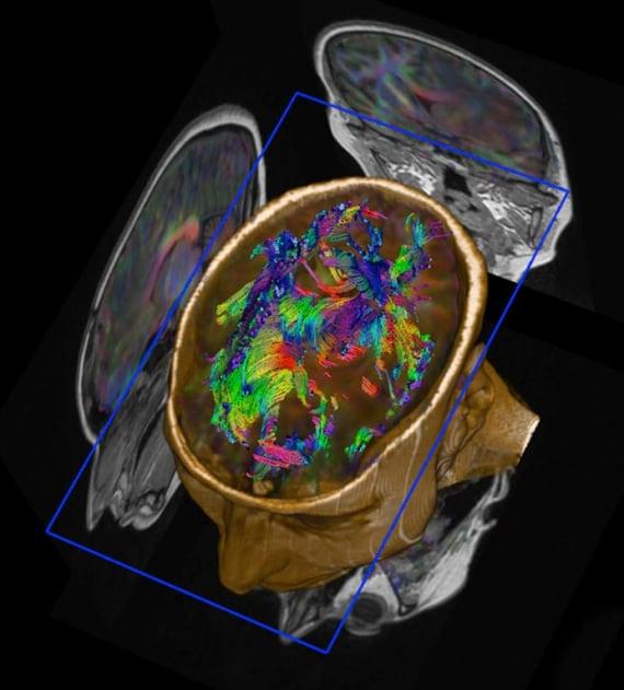Wellcome Images, corpo umano, siamo fatti così, cervello, assoni, neuroni, risonanza magnetica