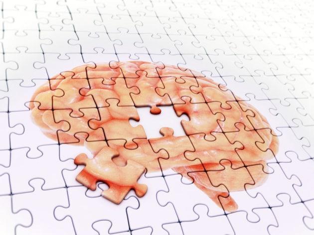 Alzheimer, fallita un'altra importante sperimentazione farmacologica