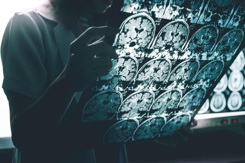L'Alzheimer può essere trasmesso? Se ne torna a parlare