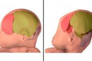 cranioprimadopo