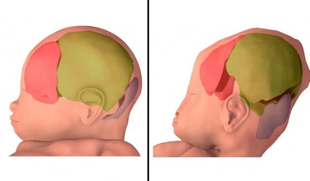 Durante il parto, il cranio di un feto è capace di trasformazioni incredibili