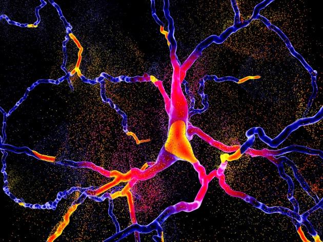 Parkinson: la stimolazione cerebrale profonda ricarica le batterie delle cellule cerebrali