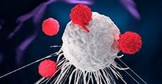 CAR-T e cancro